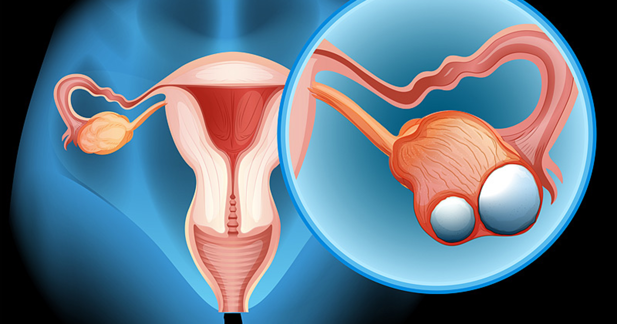 the background information of ovarian cancer Ovarian cancer is cancer that affects one or both ovaries ovarian cancer is not common ovarian cancer is not common but because ovarian cancer often goes undetected until it is in an advanced stage, it is the number one cause of deaths from gynecologic cancer in the united states.