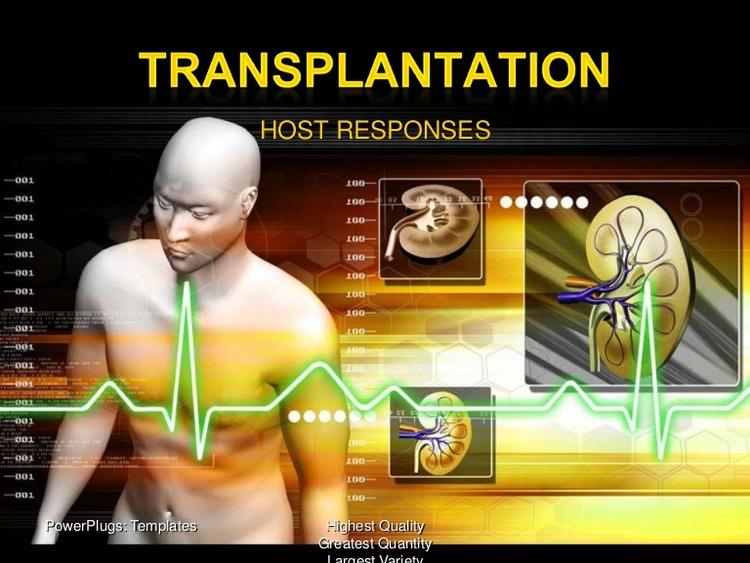Excellent Amateur transplants elements song