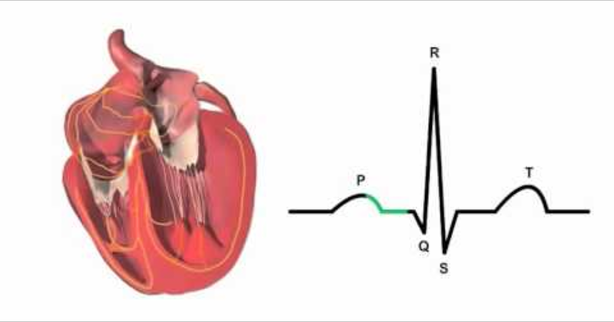 Cardiac conduction system and its relationship with ECG ...