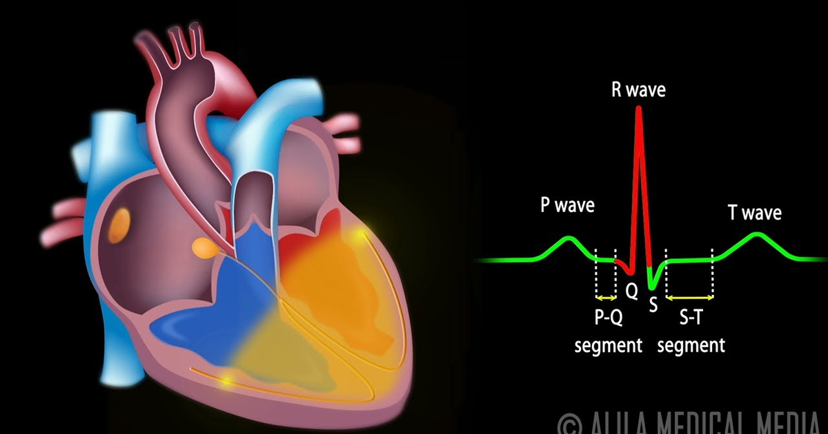 the importance of electrocardiogram in understanding cardiac physiology Basic cardiac electrophysiology is foundational to understanding normal cardiac function in terms of rate and rhythm and initiation of cardiac muscle contraction the primary clinical tool for assessing cardiac electrical events is the electrocardiogram (ecg), which provides global and regional information on rate, rhythm, and electrical.