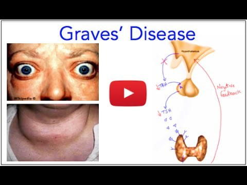 graves disease How can the answer be improved.