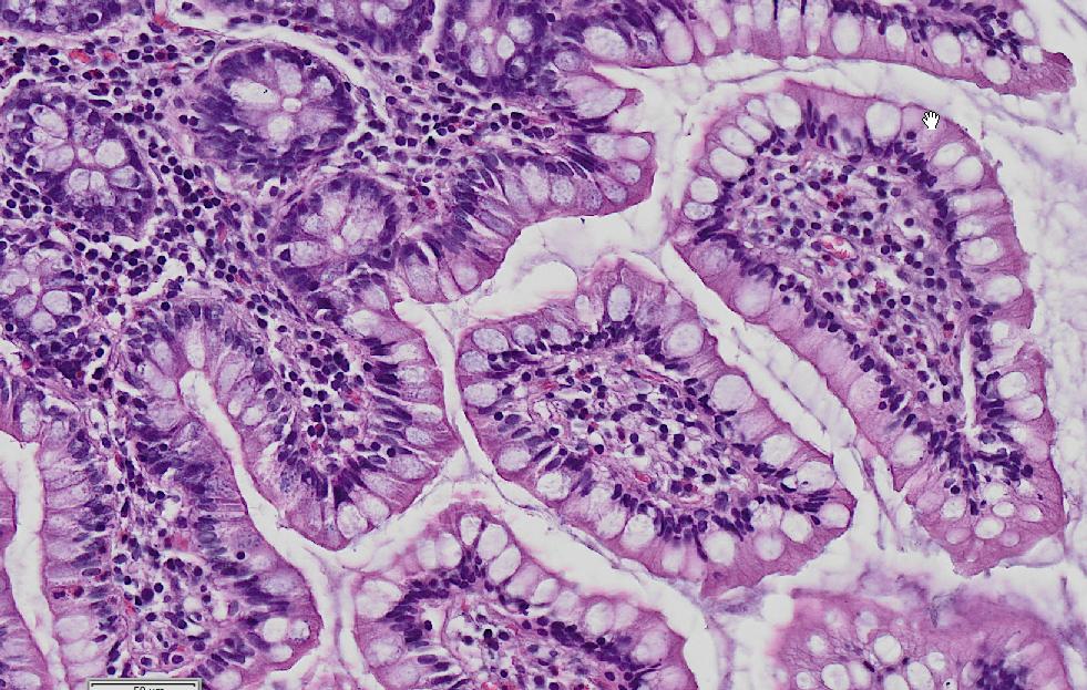 #Intestine #histology