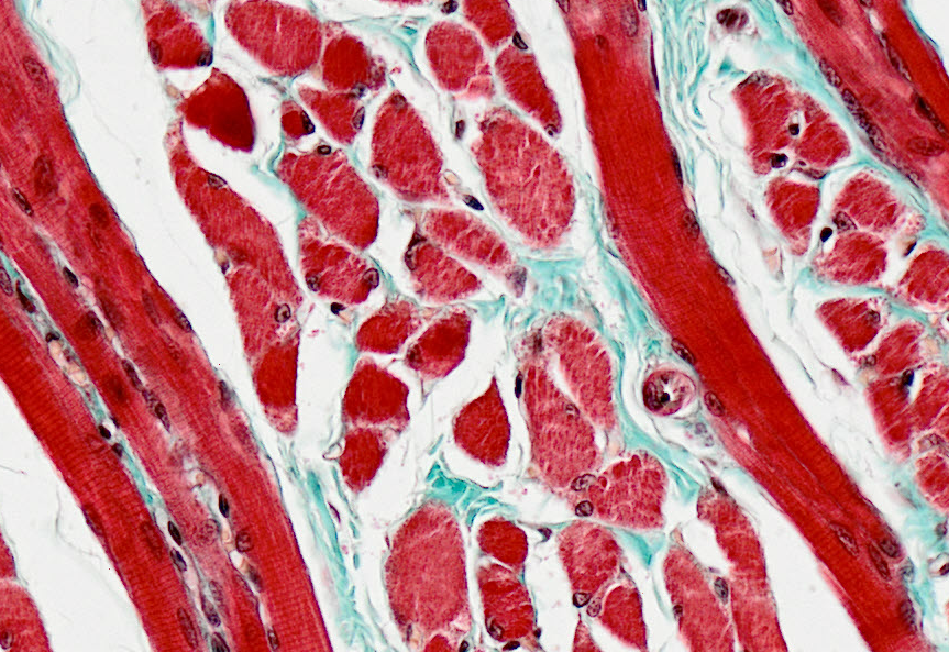 Skeletal #muscle #histology