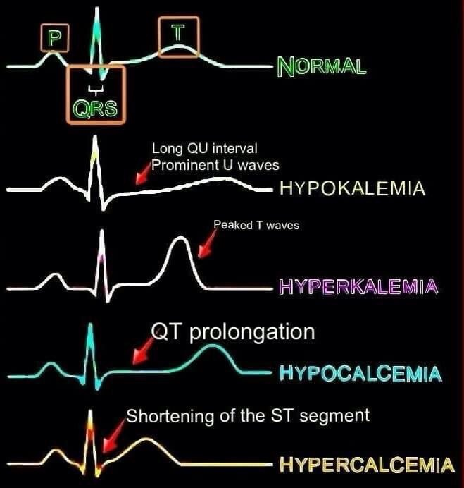 ECG changes in hypo/hyper kalemia/calcemia