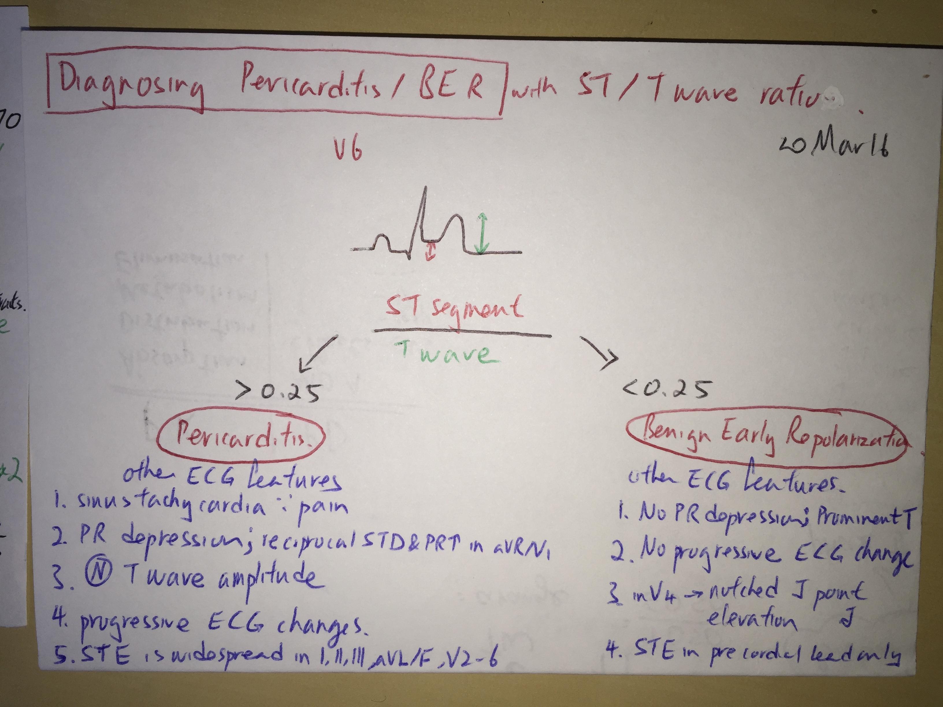 ECG pericarditis vs benign early repolarization