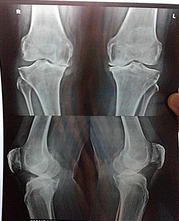 Knee Changes In Osteoarthritis