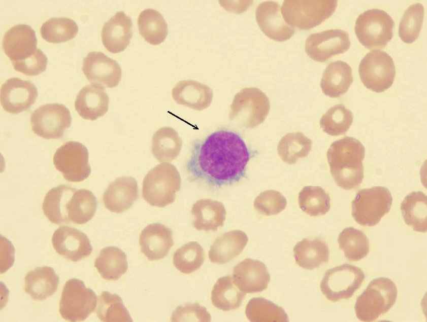 Hariy Cell in Leukaemia