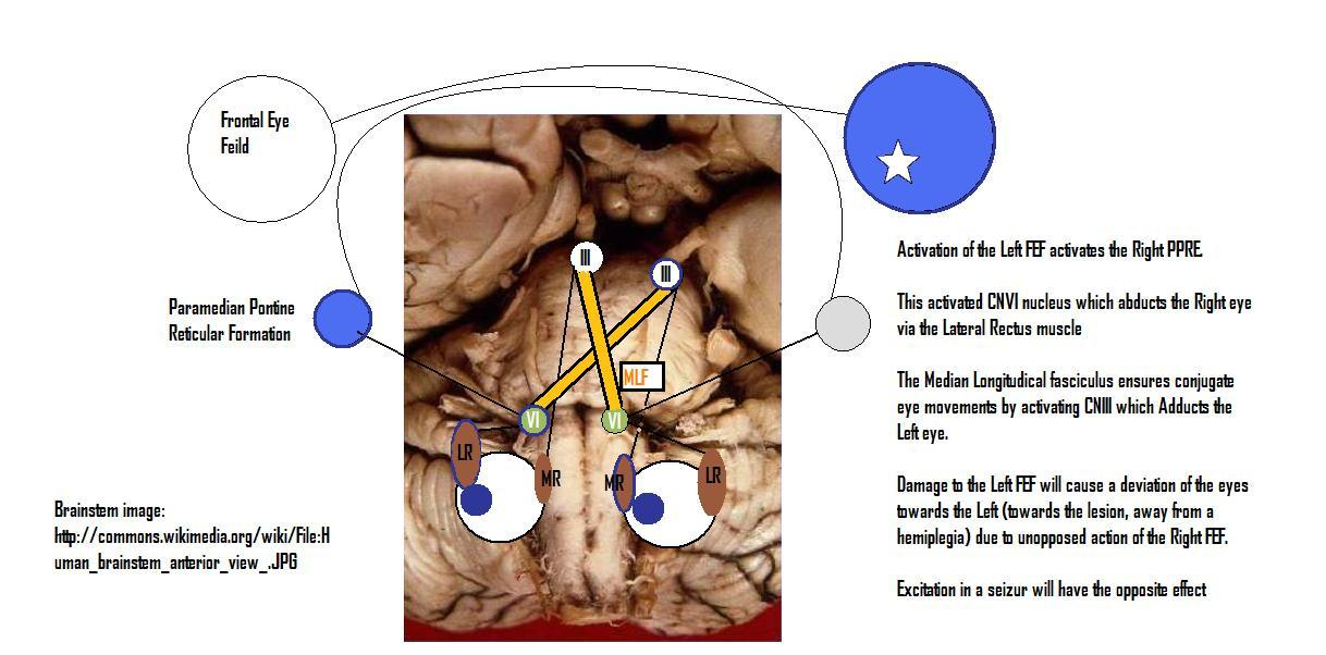 Persistant Eye deviation in stroke and seizures
