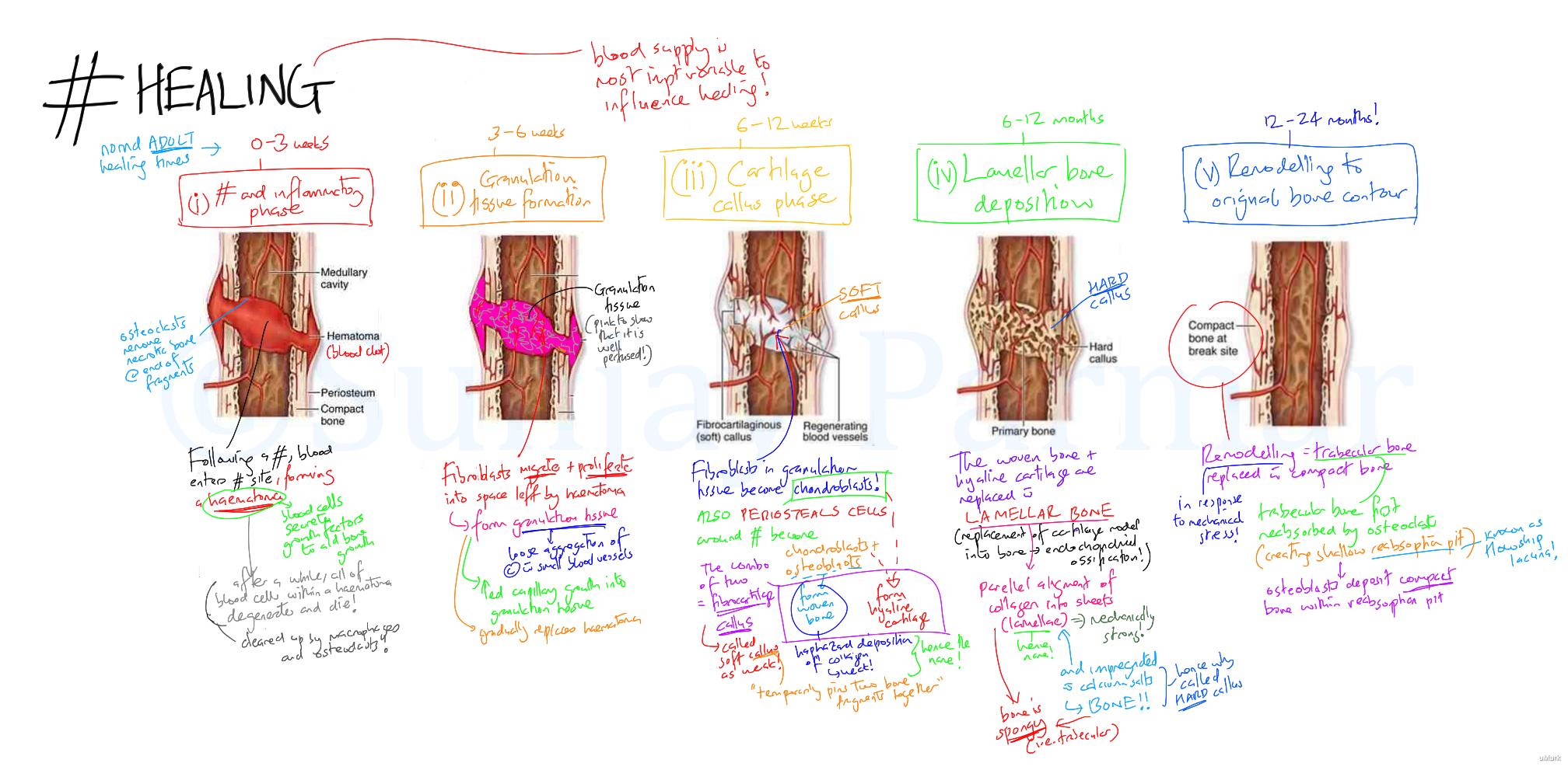 Fracture healing (Visual mnemonic)