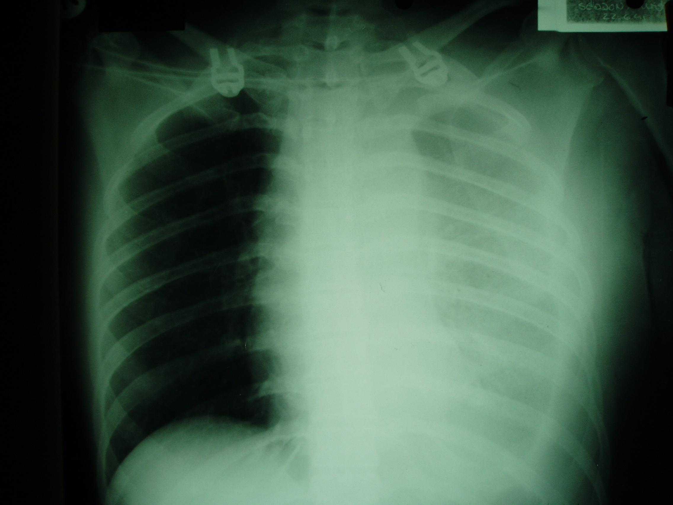 Haemothorax