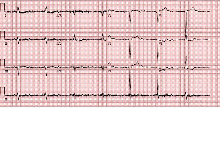 ECG with muscle tremor