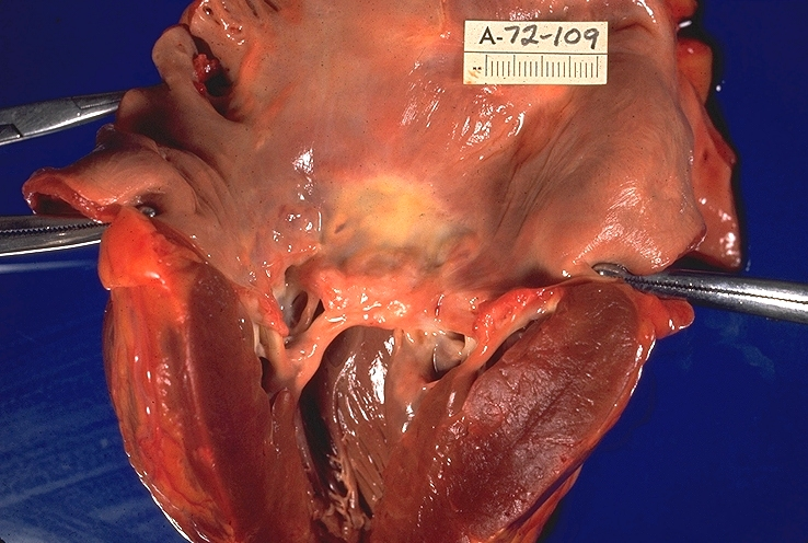 Rheumatic Heart Disease.