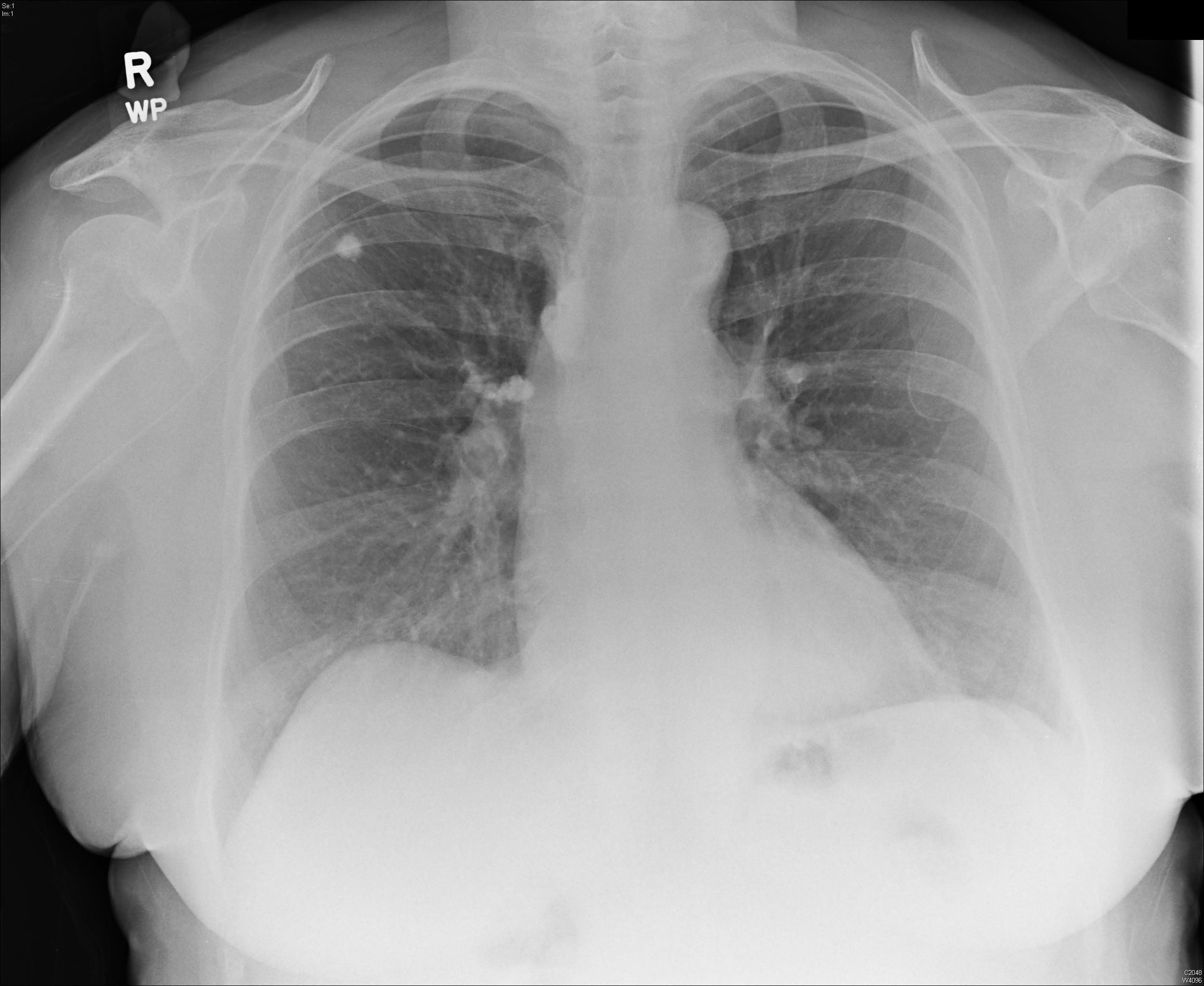 X-ray of old TB