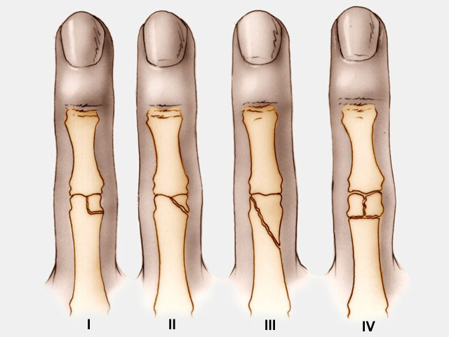 London classification of PIPJ fracture