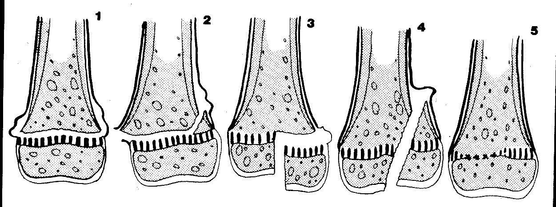 Salter Harris Classification epiphyseal injuries